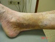 DermatiteJaunedocre